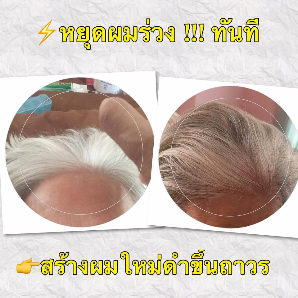 Also Hair Tonic Booster รูปที่ 5