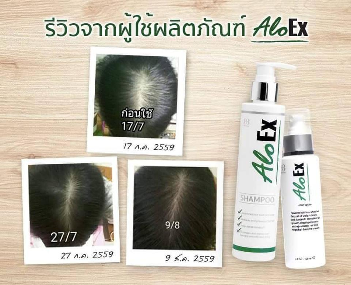 AloEx Hair Regrowth Serum เซรั่มสำหรับคนผมบางและผมร่วง อโลเอ็กซ์ (ส่งฟรี EMS) รูปที่ 4