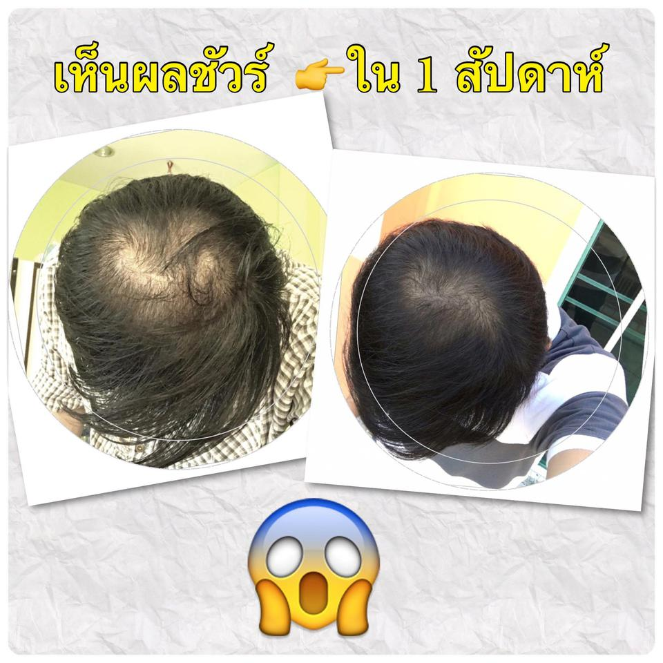 Also Hair Tonic Booster รูปที่ 4
