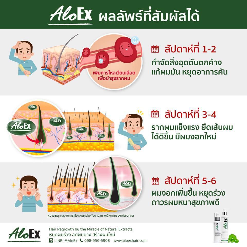 AloEx Hair Regrowth Serum เซรั่มสำหรับคนผมบางและผมร่วง อโลเอ็กซ์ (ส่งฟรี EMS) รูปที่ 6