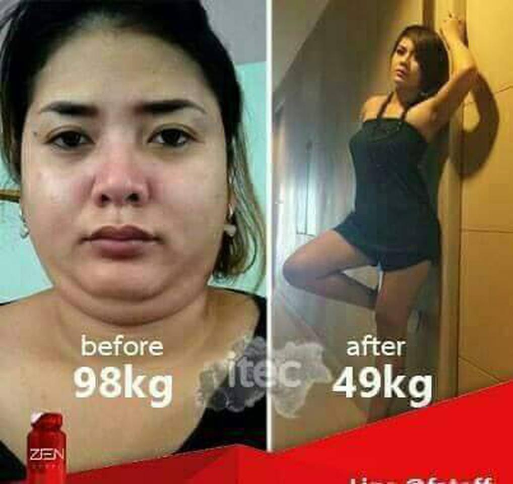 อาเสริมลดน้ำหนัก ZEN รูปที่ 4