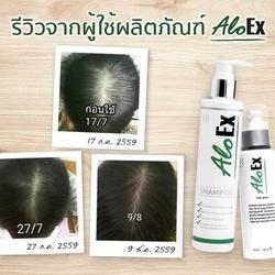 AloEx Hair Regrowth Serum เซรั่มสำหรับคนผมบางและผมร่วง อโลเอ็กซ์ (ส่งฟรี EMS) รูปเล็กที่ 4